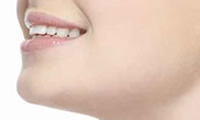 あごのプロテーゼ手術