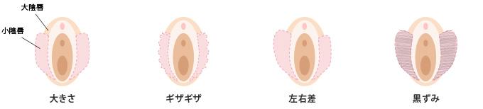 小陰唇の悩み