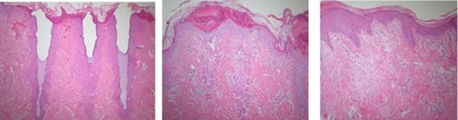 肌細胞の変化