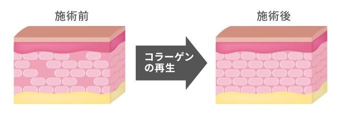 ダーマペンの肌の変化