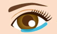 目の下のたるみ取り手術